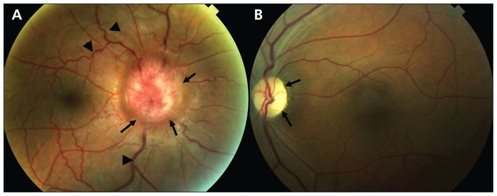 Foster Kennedy Syndrome. It is classically described as ipsilateral optic atrophy with contralateral papilledema in the setting of a compressive optic neuropathy. In this case, the lesion would be compressing the left optic nerve.  Image credit: Pastora-Salvador N, Peralta-Calvo J.  Foster Kennedy syndrome: papilledema in one eye with optic atrophy in the other eye . CMAJ. 2011;183:2135.