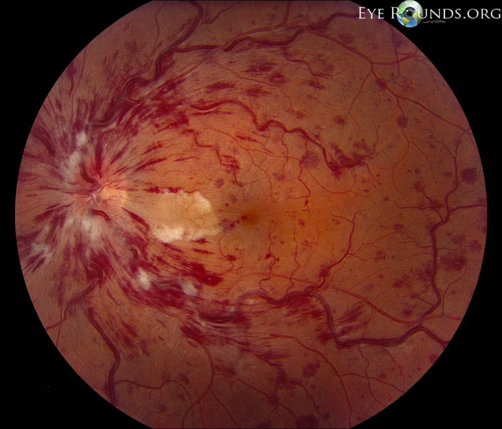 Central retinal vein occlusion with cilioretinal artery occlusion.  Image credit: University of Iowa,  EyeRounds.org .