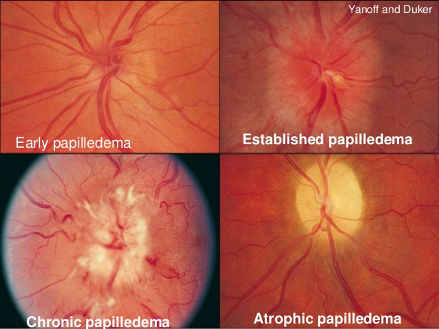 Stages of papilledema.  Image credit:  slideshare.net .