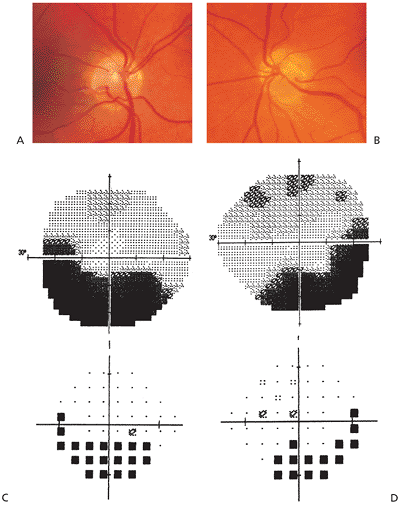 Inferior visual field defects associated with superior segmental optic nerve hypoplasia.  Image credit:  Fovea.ir .