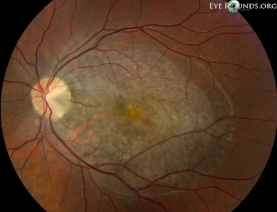 Large macular serous retinal detachment in association with an optic pit.  Image credit:   University of Iowa, EyeRounds.org .