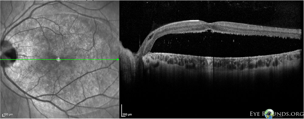 SD-OCT showing a large serous retinal detachment in the case of a optic pit.  Image credit:  University of Iowa, EyeRounds.org .