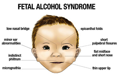 Facial signs in fetal alcohol syndrome.  Image credit:  The National Institutes of Health .