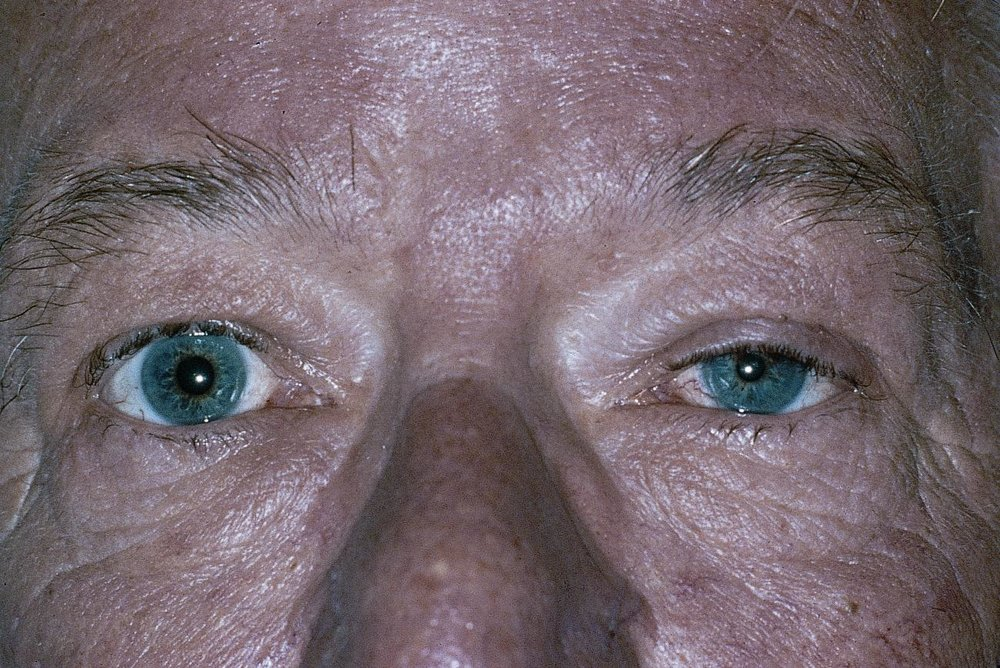 Left Horner syndrome.    Image credit:  American Academy of Ophthalmology. Used with permission for educational purposes.