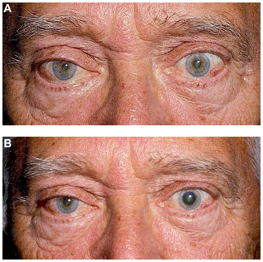 Cocaine test for Horner syndrome (19).    A.  Before drops administered (suspected right Horner syndrome).   B.  After drops administered. Note that there is some pupil dilation in the right eye, but the amount of anisocoria is ≥1 mm.   Image credit:  Kanagalingam S, Miller NR.  Eye Brain  2015;7:35-46. Available  online . Used under the  Creative Commons Attribution - Non Commercial (unported, v3.0) License .