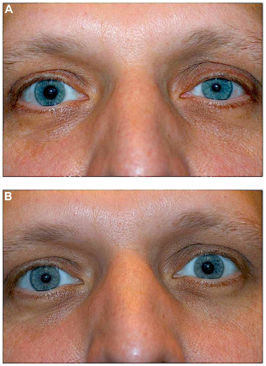 "Apraclonidine test for Horner syndrome (19).    A.  Before drops administered (suspected left Horner syndrome).   B.  After drops administered. Note the slight ""reversal of anisocoria"" in the left eye and the resolution of ptosis.   Image credit:  Kanagalingam S, Miller NR.  Eye Brain  2015;7:35-46. Available  online . Used under the  Creative Commons Attribution - Non Commercial (unported, v3.0) License ."