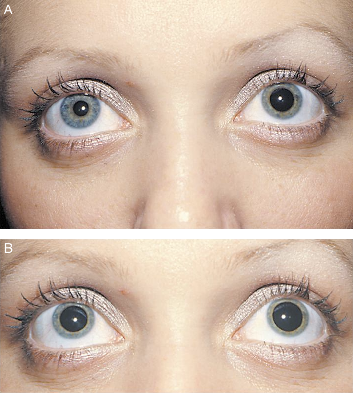 Hydroxyamphetamine test for Horner syndrome (19, 21).   A. Before drops administered (suspected right Horner syndrome).  B. After drops administered. Note the dilation of both pupils. This indicates an intact 3rd-order, postganglionic neuron and localizes the lesion to the 1st-order (central) or 2nd-order (preganglionic) neuron.   Image credit:  Modified from clinical images courtesy of Lanning B. Kline, M.D. American Academy of Ophthalmology. Used with permission for educational purposes.