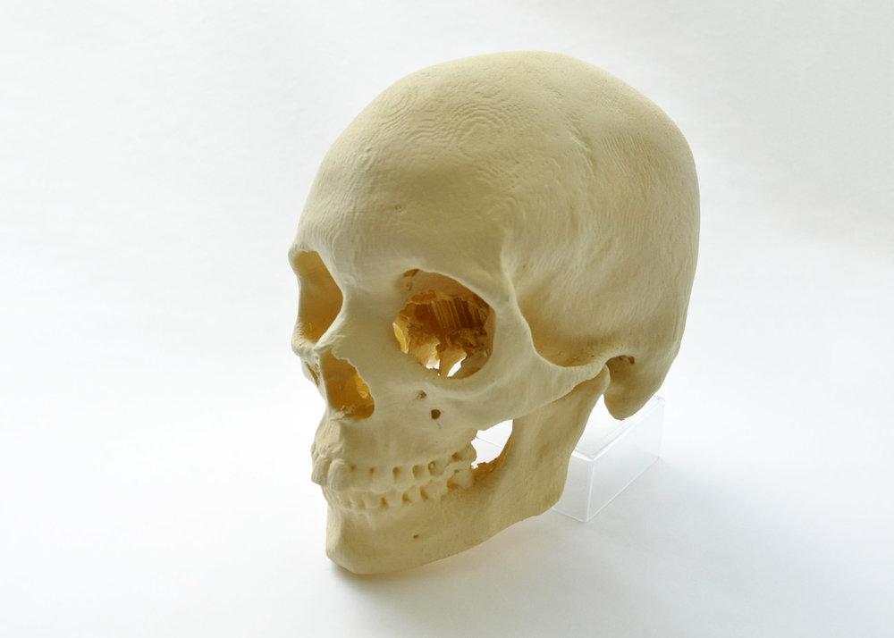 3D_printed_skull_DO.jpg