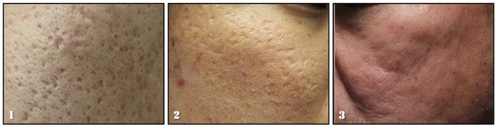 Slide 2_Lasers_Acne Scars