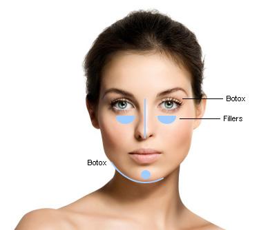 Facial Contouring with Radiesse
