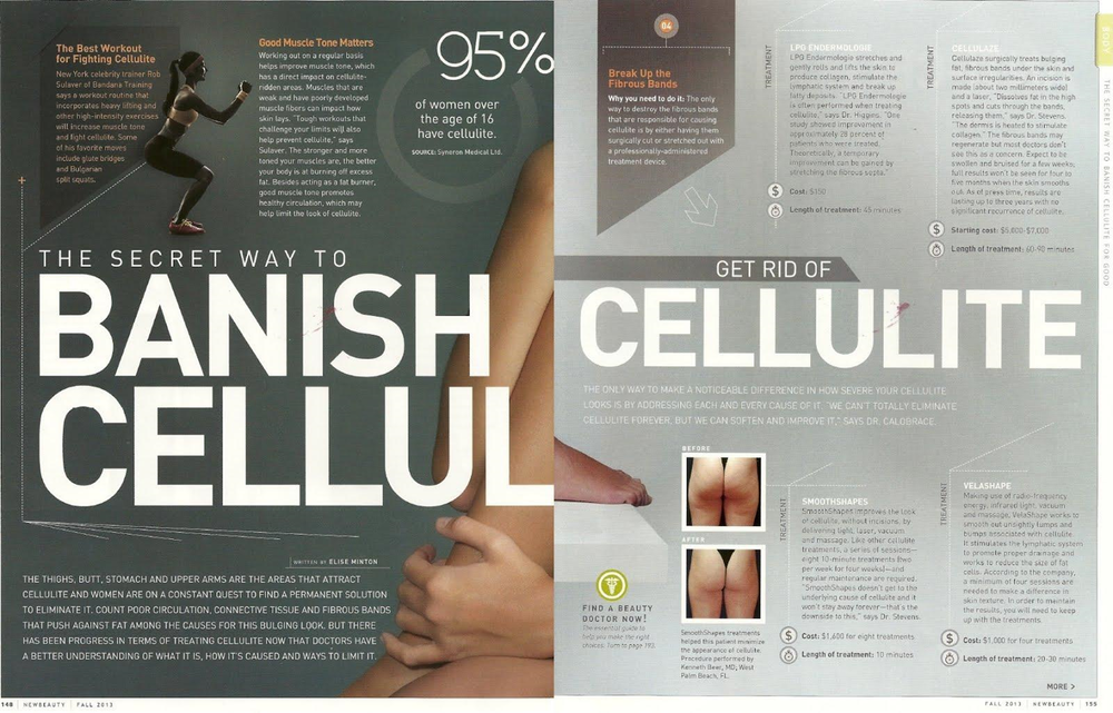 VelaShape 3 cellulite reduction treatment The Aesthetic Studio Clinic & Surgery