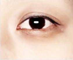 A: Hyperpigmentation