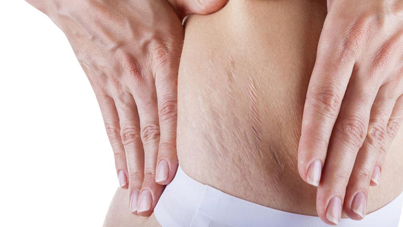 Stretch Marks - Read more