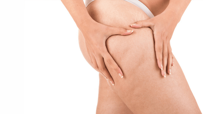 Cellulite  - Read more