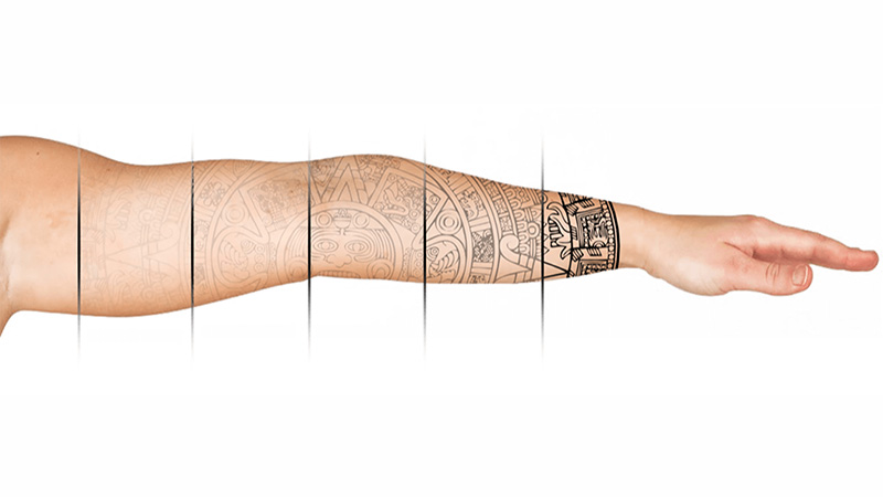 Tattoo Removal - Read more