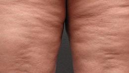 cellulite-grade-3.jpg