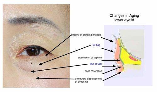 Anatomy of eye-bag