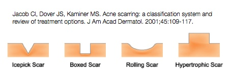 Acne Scar Classification
