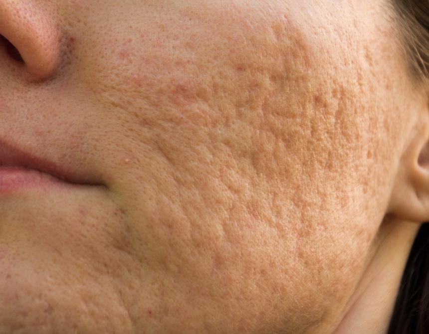 Acne Scars -