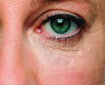 Fine lines and Wrinkles -