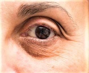 Dark-eye circles -
