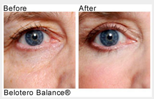 Tired of looking tired? Belotero is a filler made specifically for filling those dark permanent under eye circles. @nford_md mixes the filler with PRP for a youthful and bright result. Make an appointment today ☺️