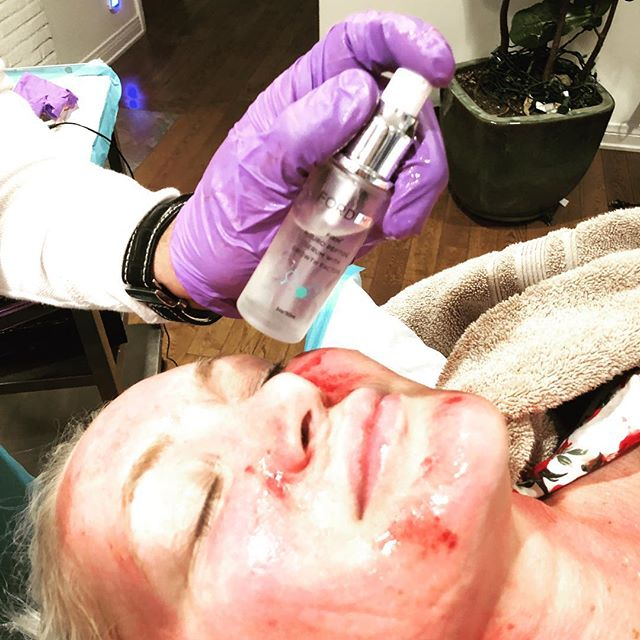 Firm Neuro Peptide Serum With #growthfactors is amazing right after a vampire facial to drive extra goodness into your #skin. @drfordmd signature product. Use daily or after your treatment. #beauty #vampirefacial #fordskincare #youth #antiaging @drfordwellness