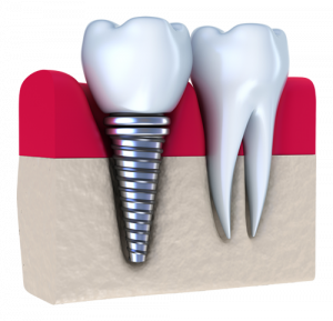dentalimplantpic-300x289.png