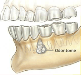 dento-alveolar-surgery1.png