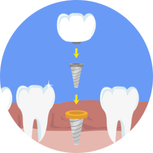 Oral-Surgery-1-300x300.png
