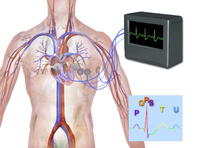 Blausen_0339_Electrocardiogram.png