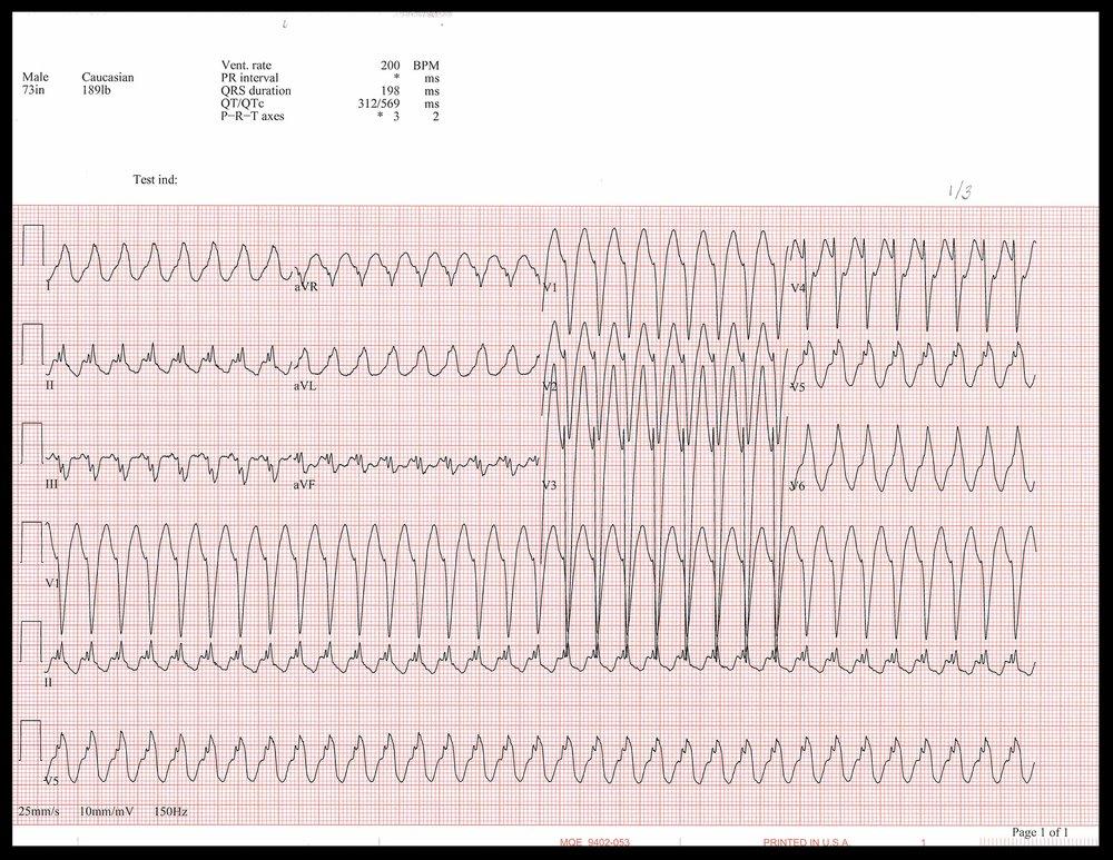 1-3 EKG.jpg