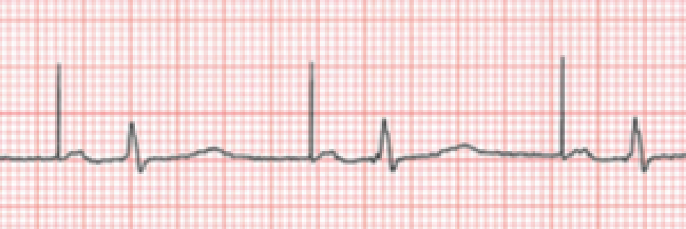 other+_ekg-01.png