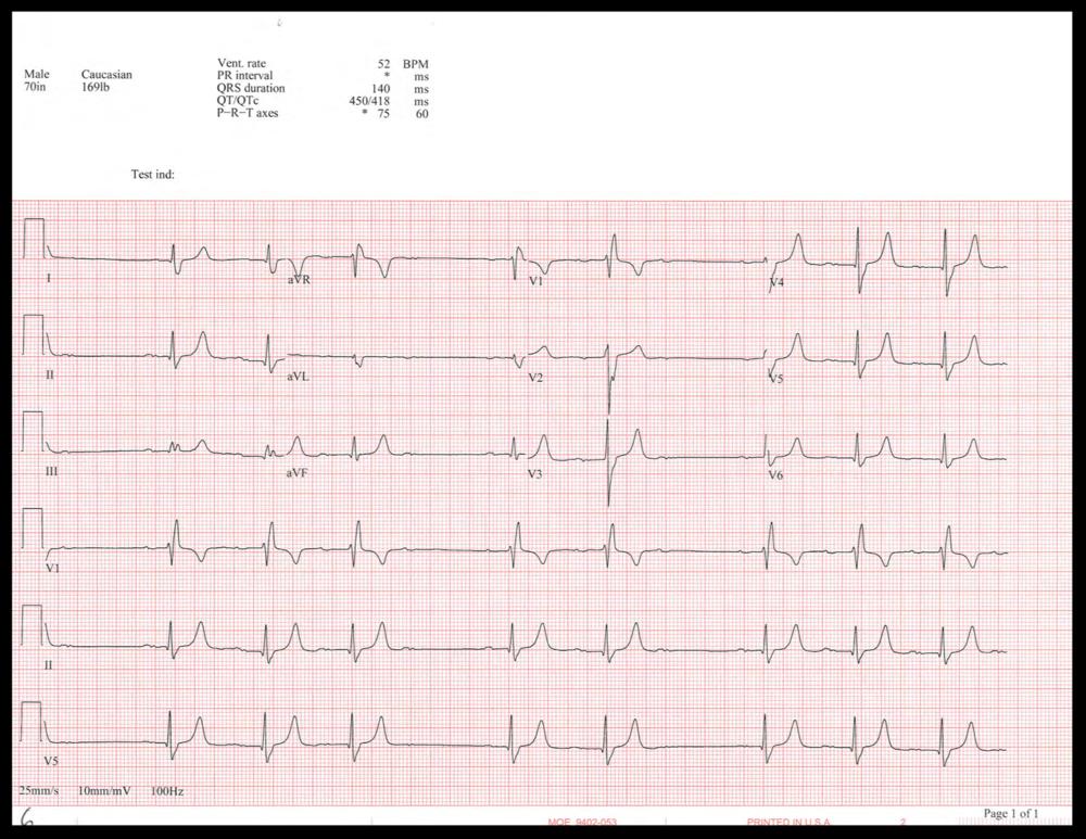 EKG_6 (1).png