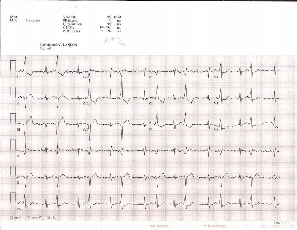 EKG_1_29