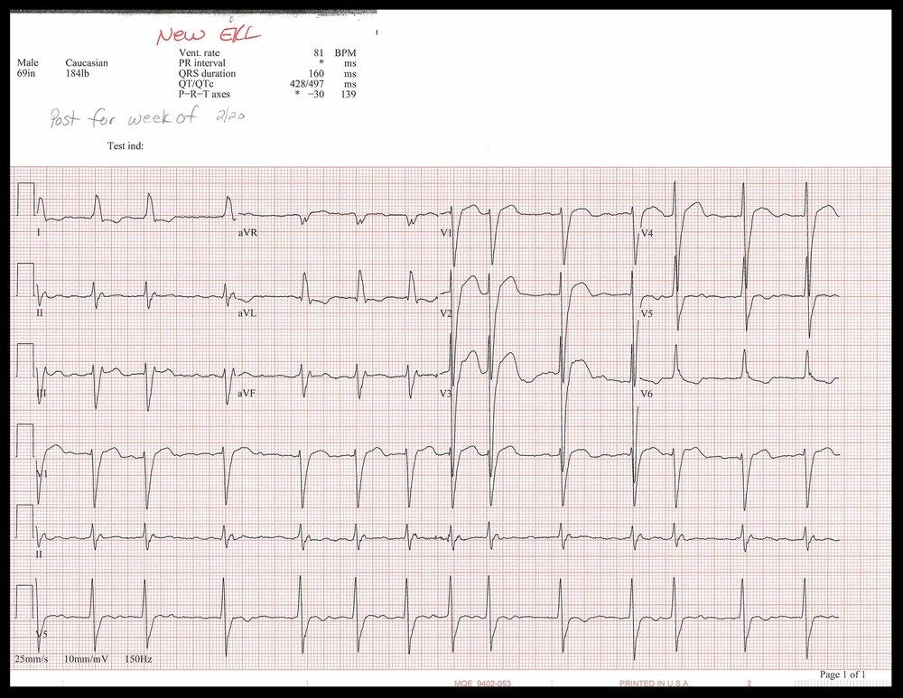 2-20 EKG_Page_1.jpg