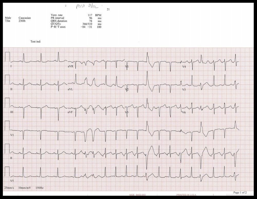 3-12 EKG_Page_1.jpg