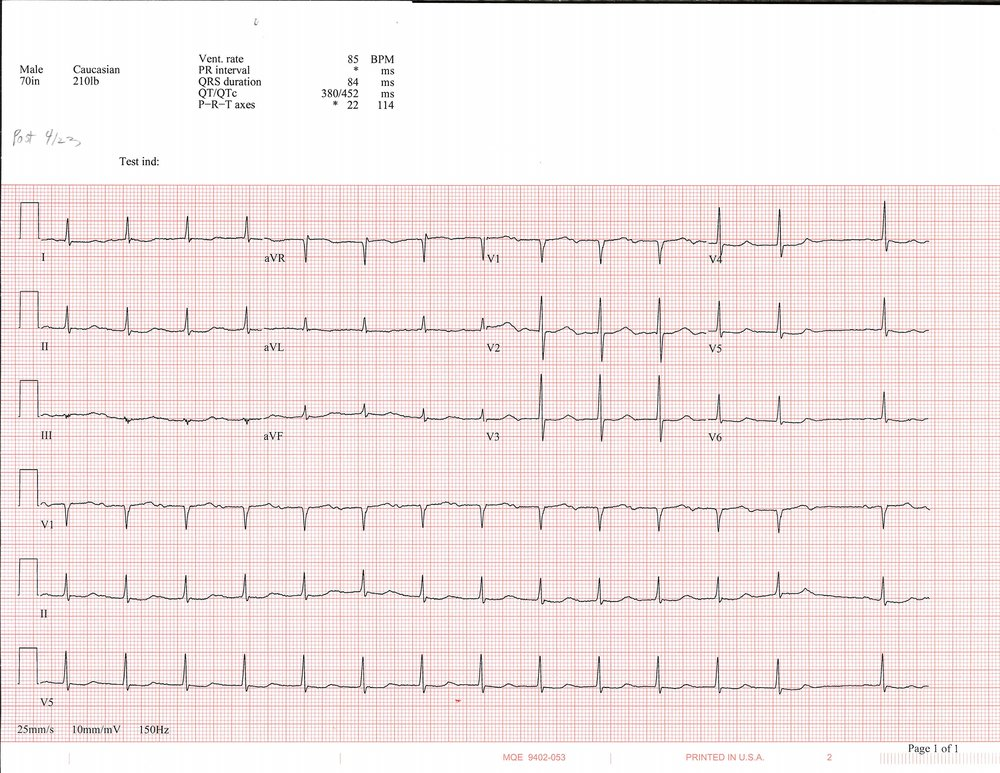 4-23 EKG_Page_1.jpg