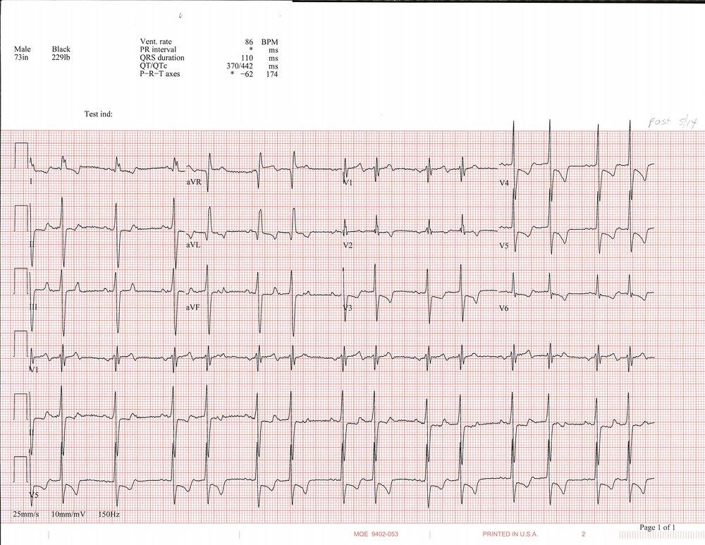 5-14 EKG_Page_1.jpg