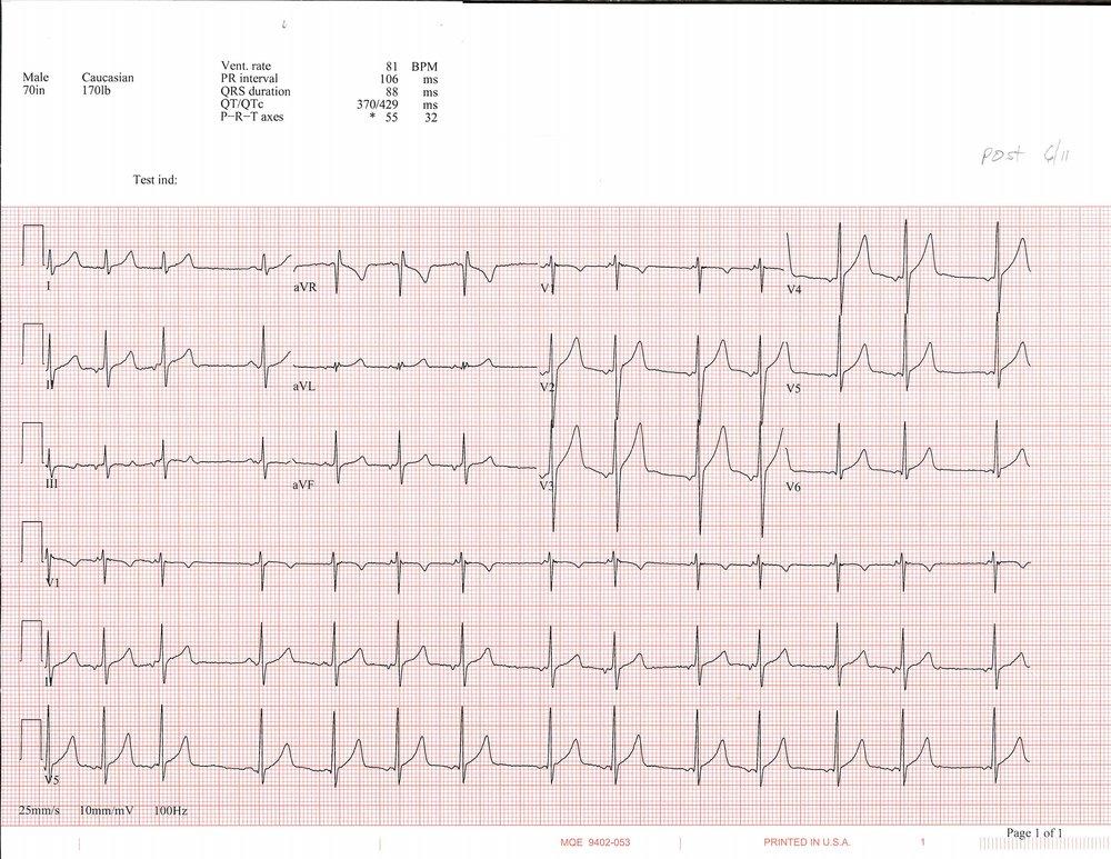 6-11 EKG_Page_1.jpg