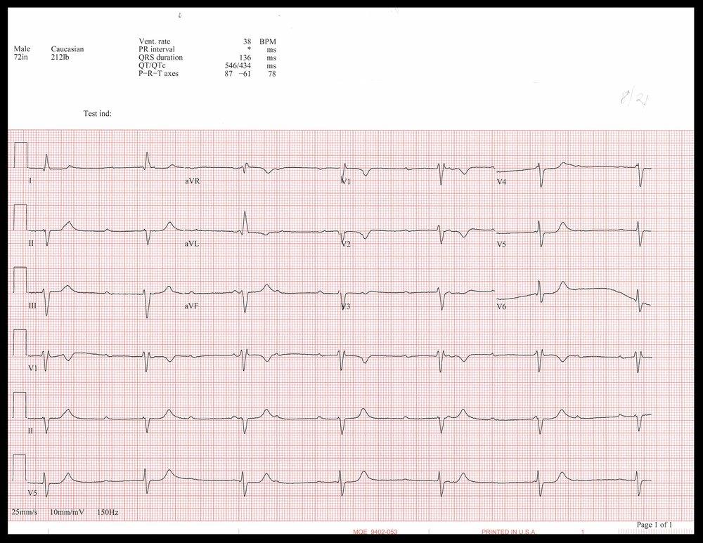 8-21 EKG_Page_1.jpg