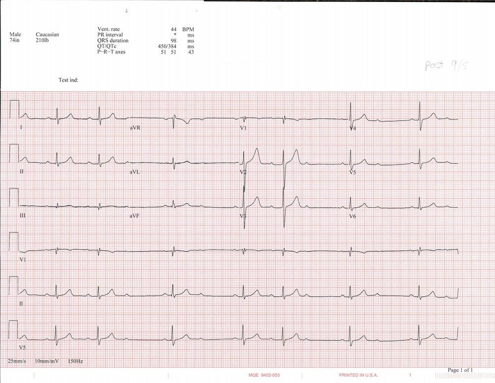 9-5 EKG_Page_1.jpg