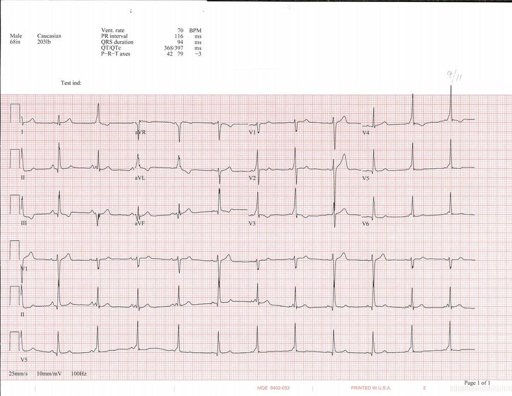 9-11 EKG_Page_1.jpg