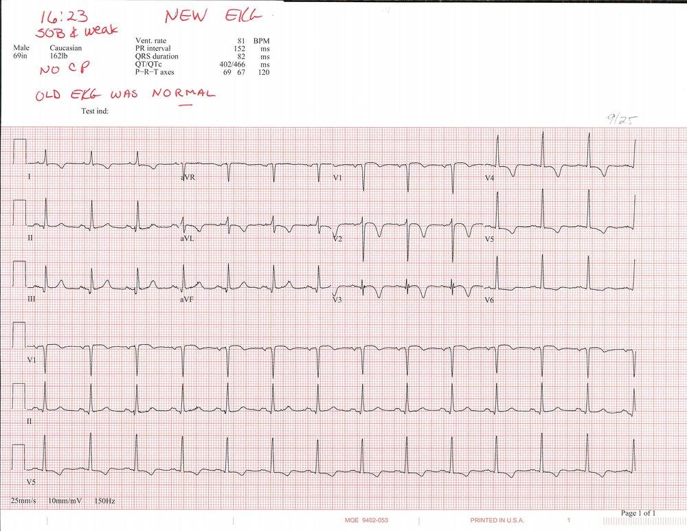 9-25 EKG_Page_1.jpg