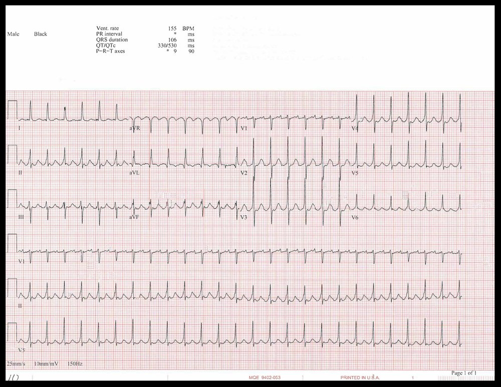 EKG of the week_Page_2.jpg