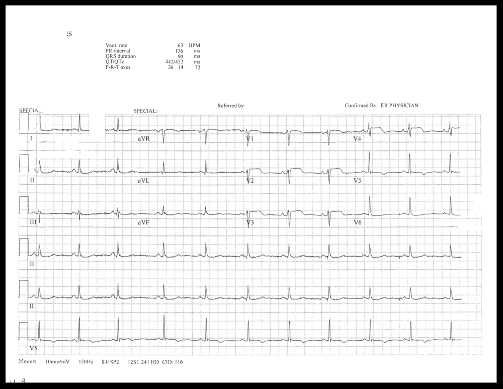EKG of the week_Page_4.png