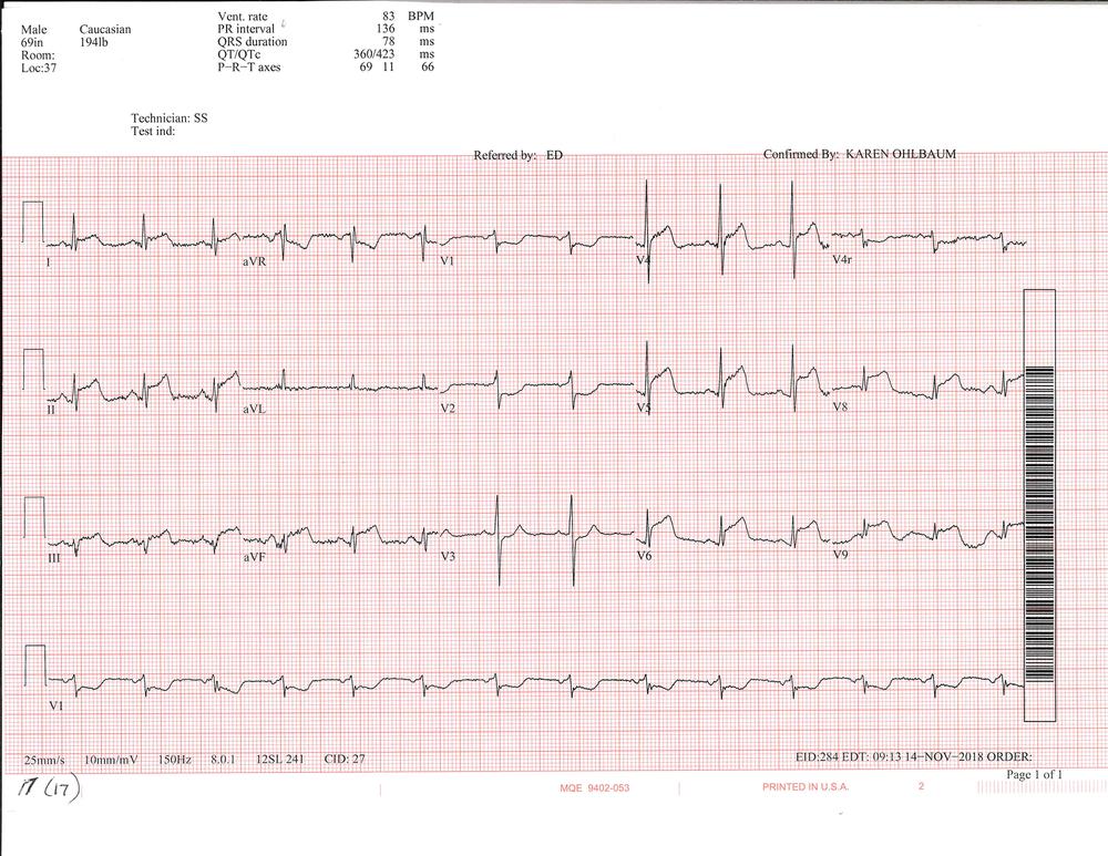 EKG of the week 3_Page_2.png