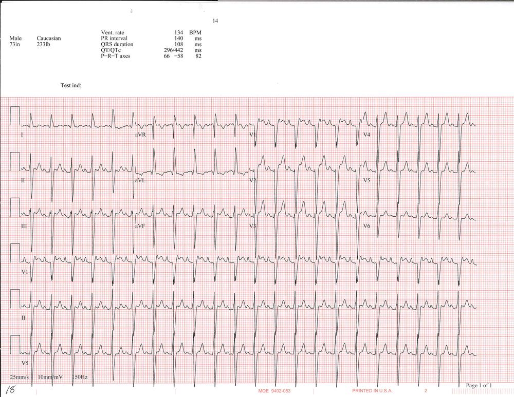 EKG of the week 3_Page_3.png