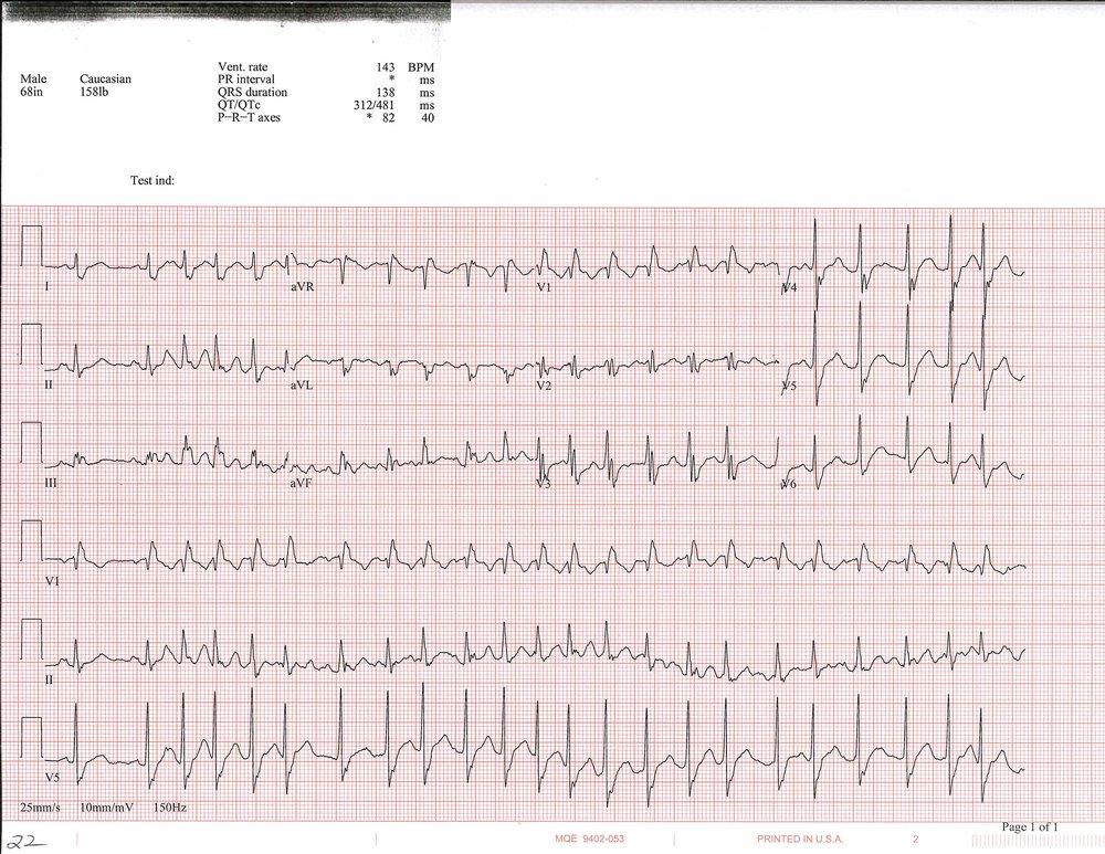 EKG+of+the+week+4_Page_3.jpg