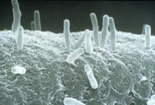 Agrobacterium.jpeg
